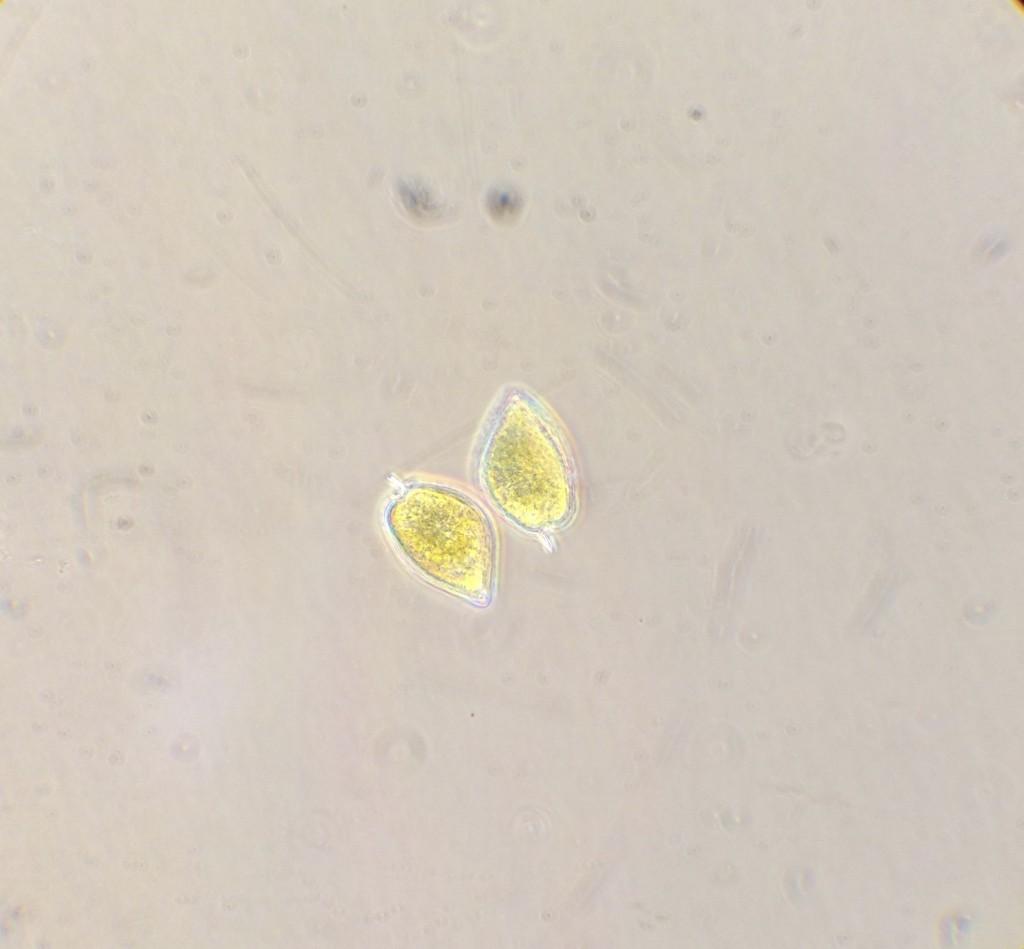 Prorocentrum cells. ©2013 Allison J. Gong