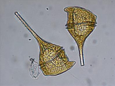 Ceratium cells.