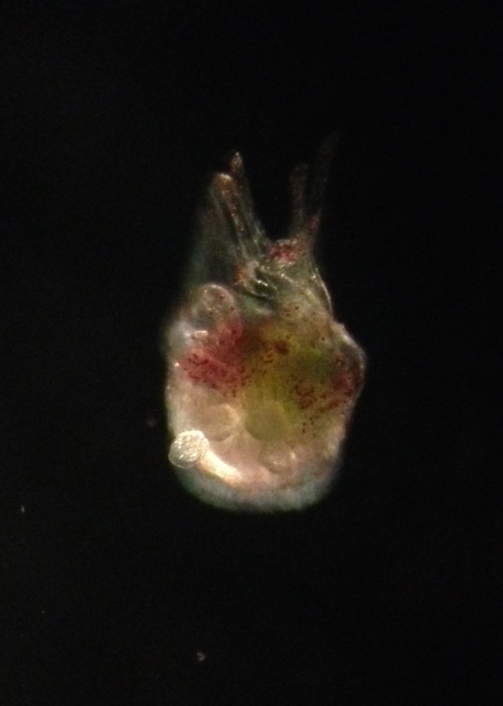 Metamorphosing larva of Strongylocentrotus purpuratus, photographed with dark-field lighting, 8 March 2015.  ©Allison J. Gong