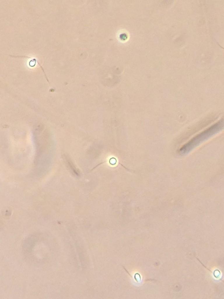 Biflagellated gametes of Ulva sp., 11 June 2015. © Allison J. Gong