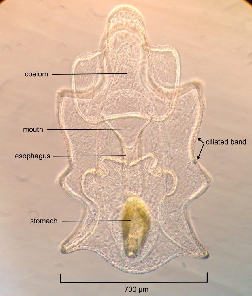 Brachiolaria larva of Pisaster ochraceus, age 17 days. 19 June 2015. © Allison J. Gong