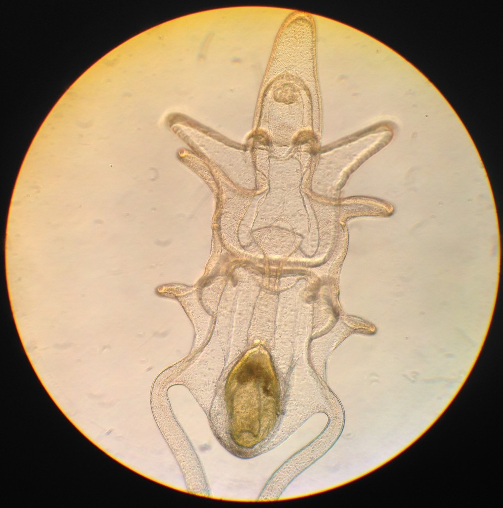 Brachiolaria larva of Pisaster ochraceus, age 24 days. 26 June 2015. © Allison J. Gong