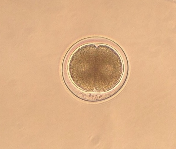 Two-cell embryo of Strongylocentrotus purpuratus, approx. two hours post-fertilization. 4 November 2015 © Allison J. Gong