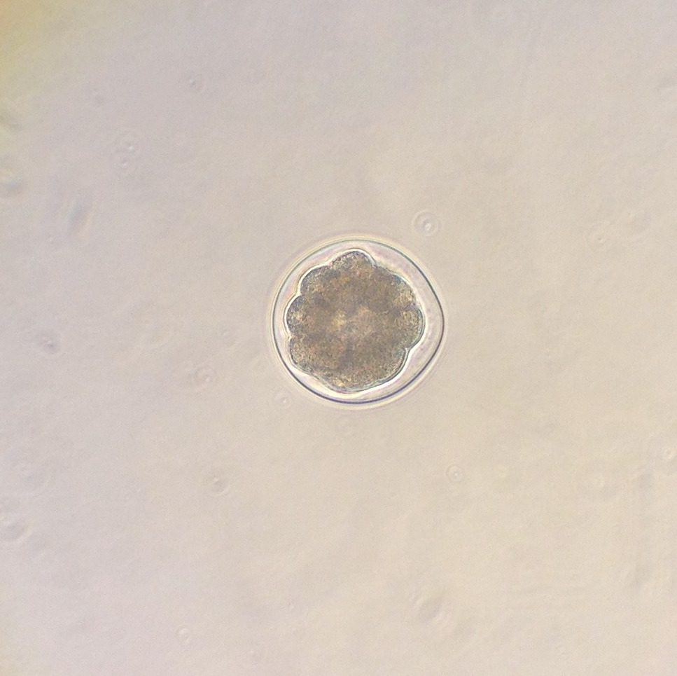16-cell embryo of the sea urchin Strongylocentrotus purpuratus. 4 November 2015 © Allison J. Gong