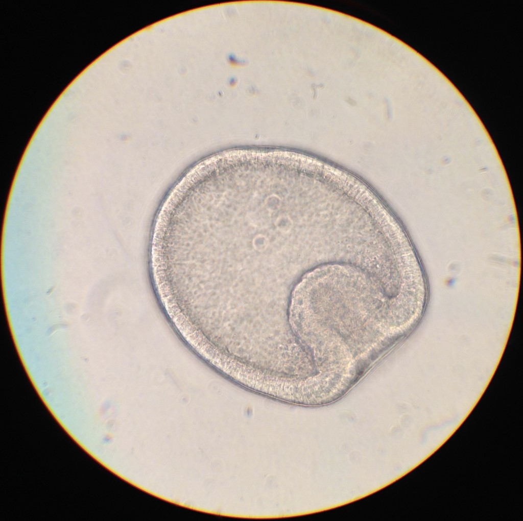 Almost-two-day-old embryo of Dermasterias imbricata. 24 February 2016 © Allison J. Gong