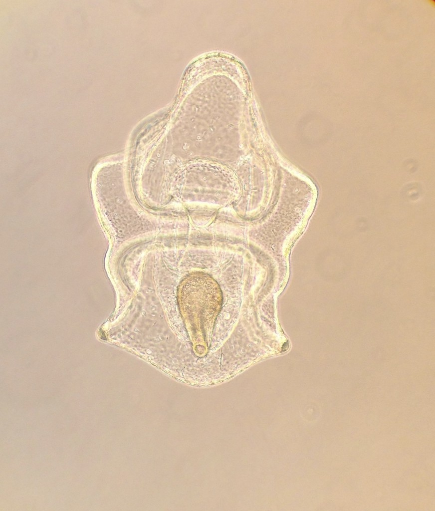 Brachiolaria larva of Dermasterias imbricata, fed D. tertiolecta, age 20 days. 14 March 2016 © Allison J. Gong