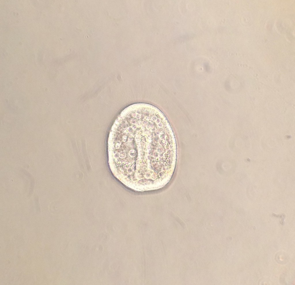 Gastrulating embryo of the sand dollar Dendraster excentricus, age 24 hrs. 24 March 2016 © Allison J. Gong