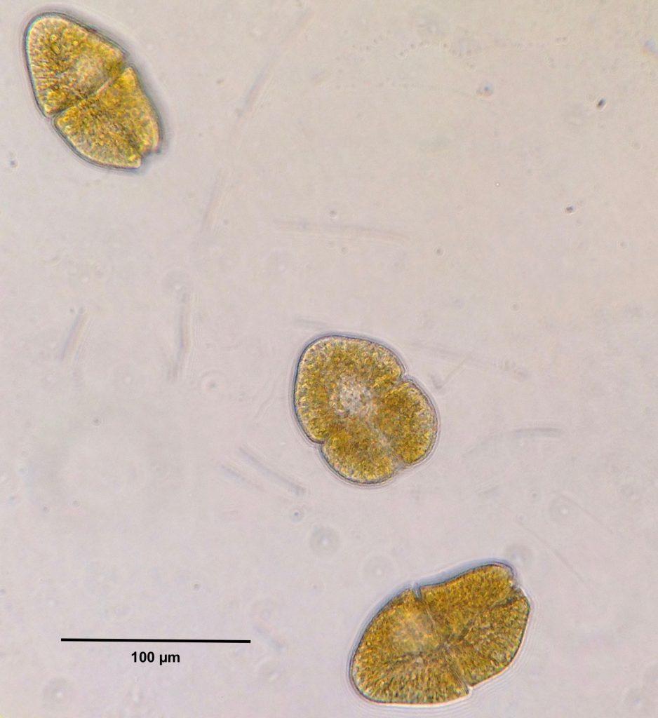 Living cells of the dinoflagellate Akashiwo sanguinea. 15 September 2016 © Allison J. Gong